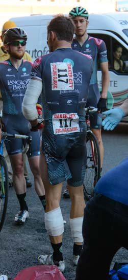 Racing cyclist with bandaged arms and legs